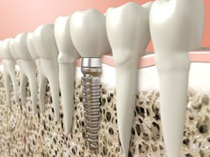 PSOMS-What-Are-Dental-Implants