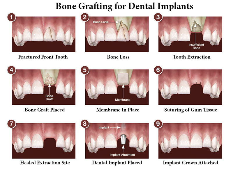Bone Grafting Psoms